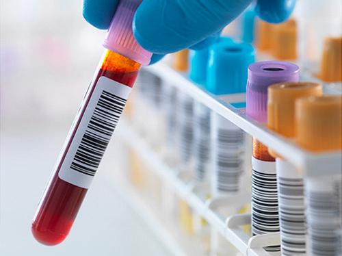 Xét nghiệm y học là gì?